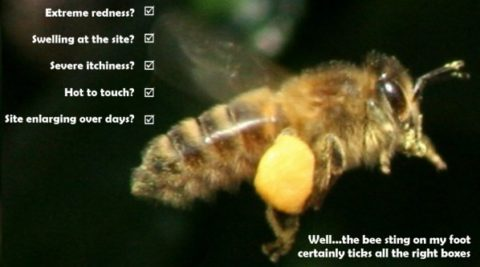 moderate-reaction-beesting